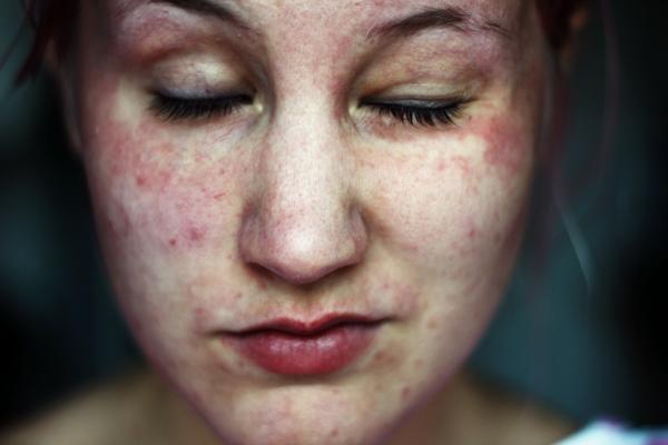 ta bort porer med bakpulver